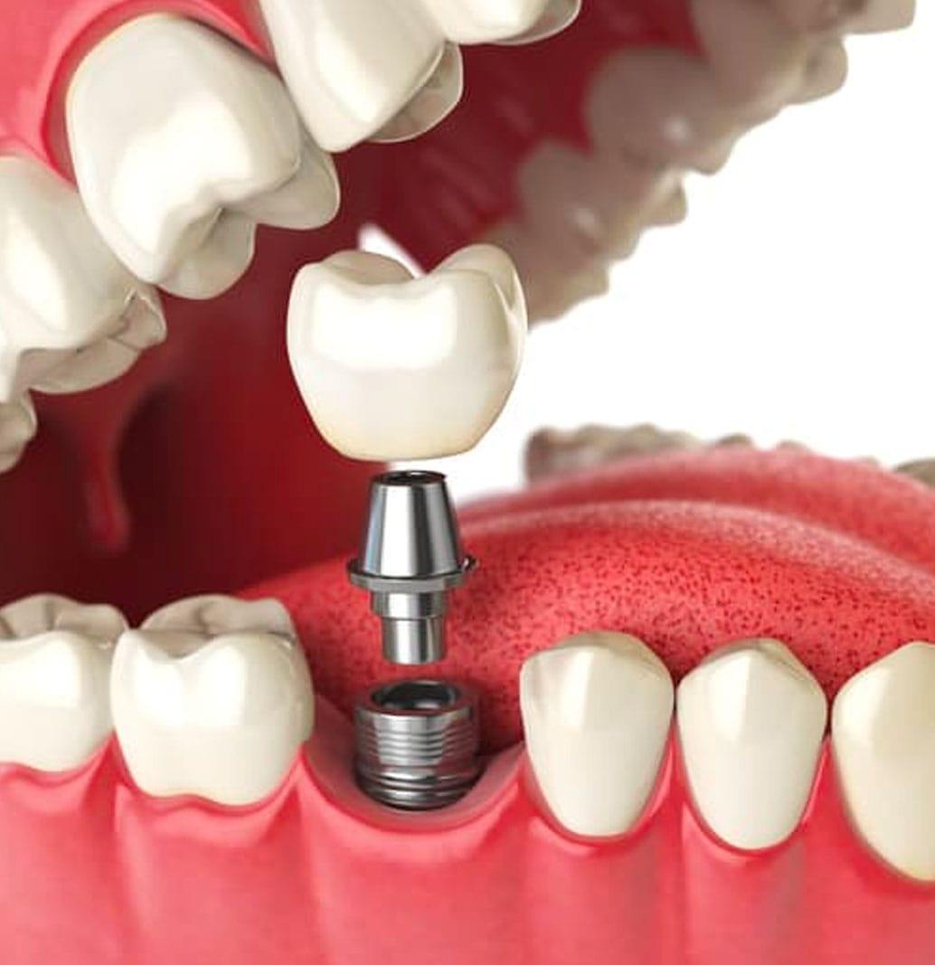 Dental Implants Santa Monica