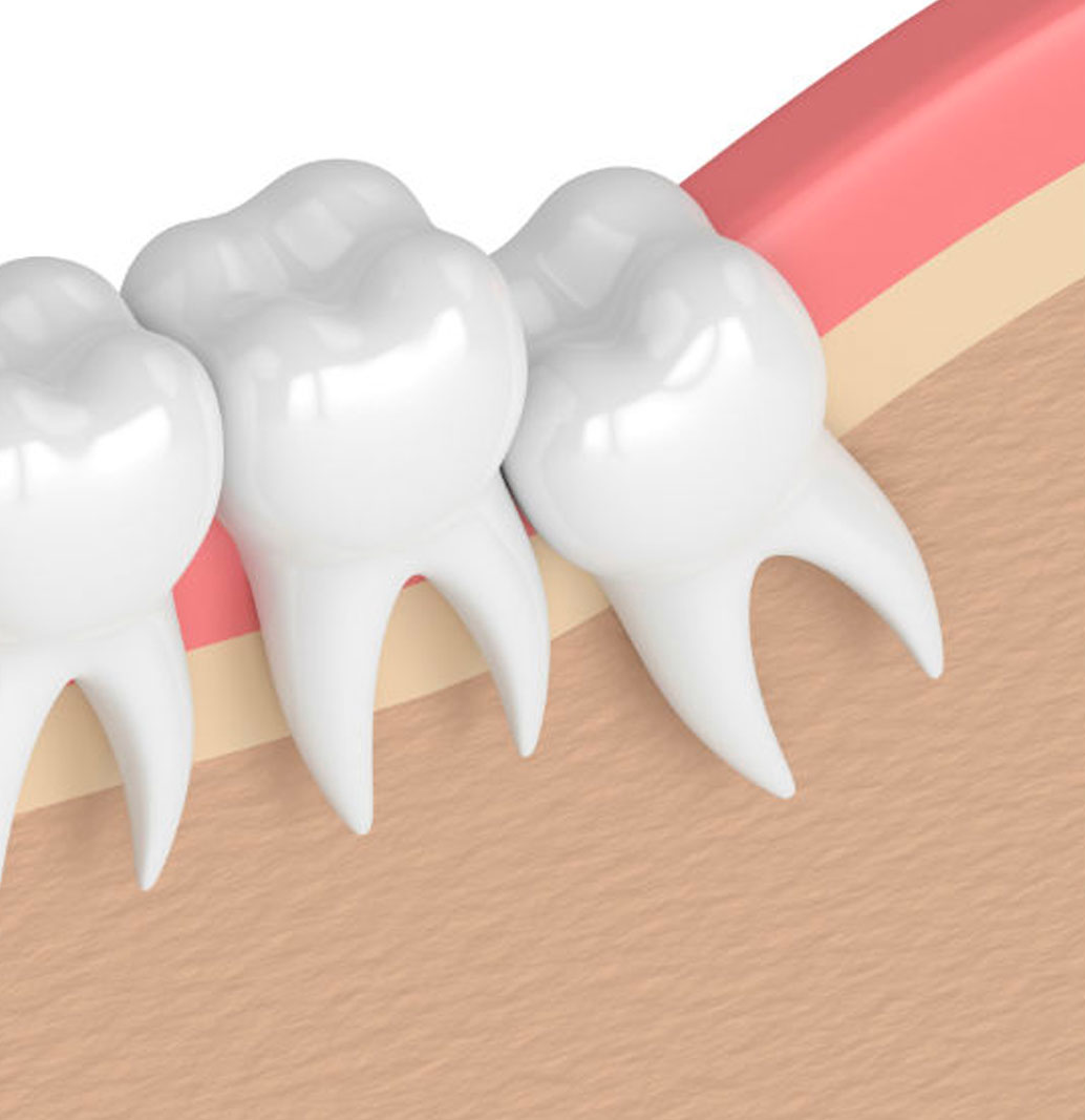 Wisdom Tooth Removal - LiveWell Dentistry